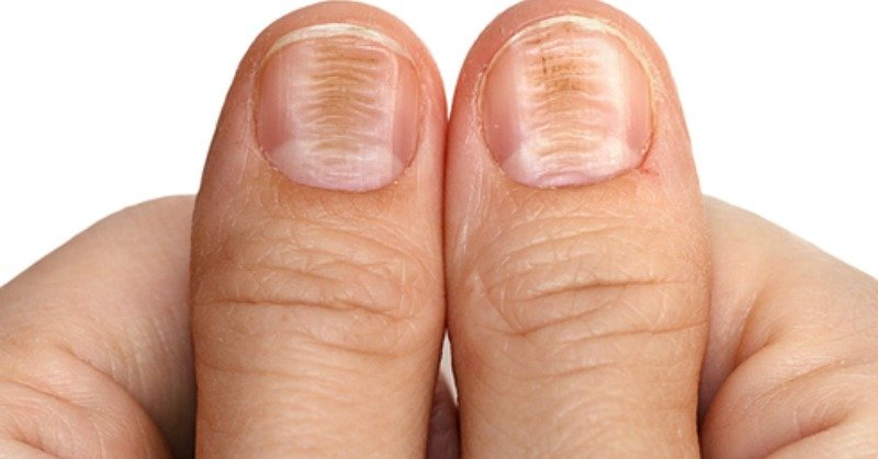 7 Health Warnings Signs Your Fingernails May Be Sending - NW