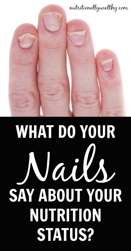 What are your fingernails trying to tell you about your nutrition status? Nutritionally Wealthy