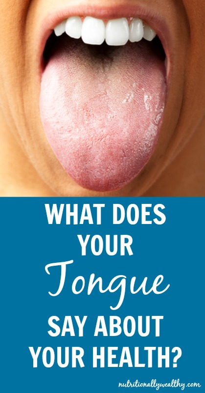 What does your TONGUE say about your health? | Nutritionally Wealthy