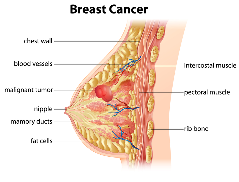 Why ARE womens breasts getting bigger? The answers