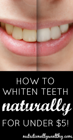 How to whiten teeth naturally for under $5! Nutritionally Wealthy