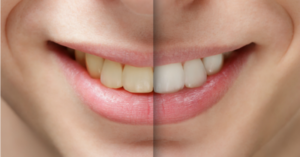 How to Whiten Your Teeth In Just 10 Minutes A Week (for less than $5)!