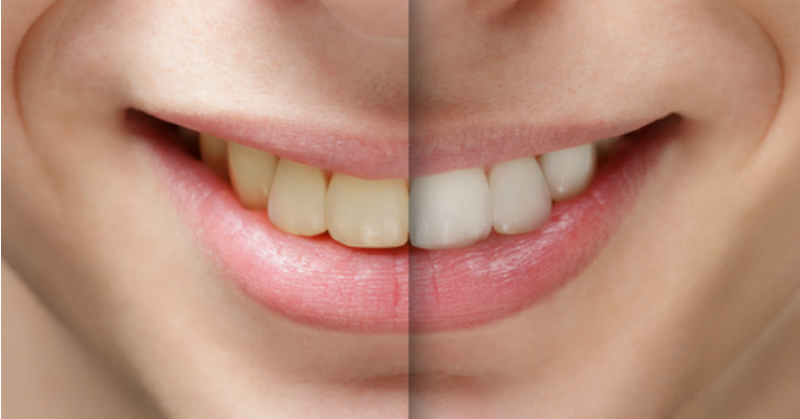 How to whiten teeth naturally! | Nutritionally Wealthy
