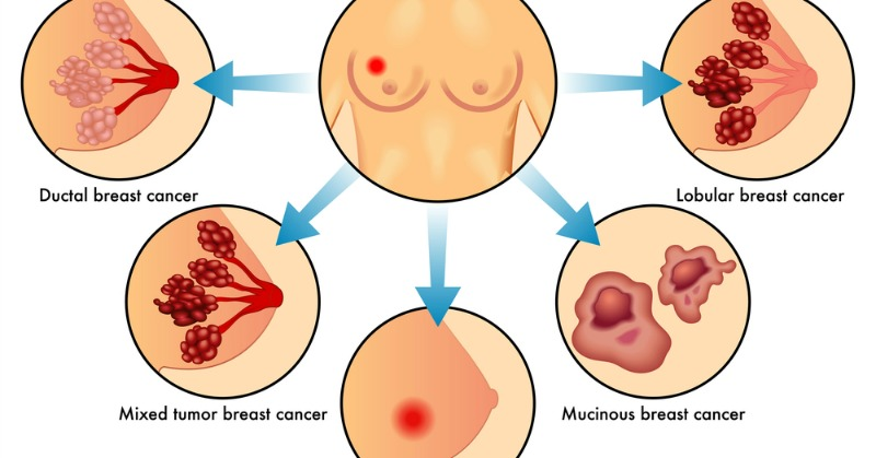 cell-phones-and-breast-cancer